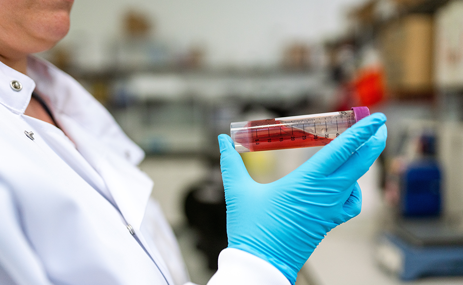 A doctor holds a test tube of red liquid--presumably blood--up for analysis.